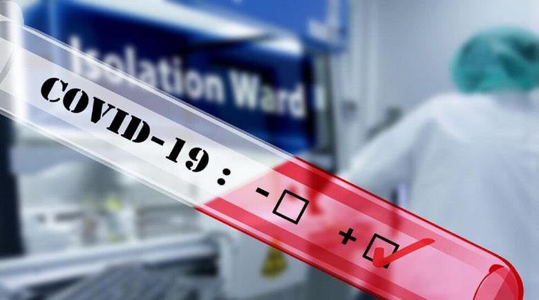 83-ма заразени с коронавирус за денонощие от 1191 PCR теста