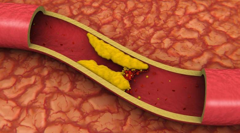 Запушените артерии – симптоми, съвети и лесни за приготвяне рецепти