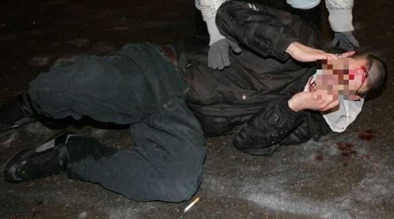Младеж наръга роднина във Враца, настаниха го в болница